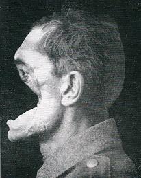 Soldat mit Gesichtsverletzung